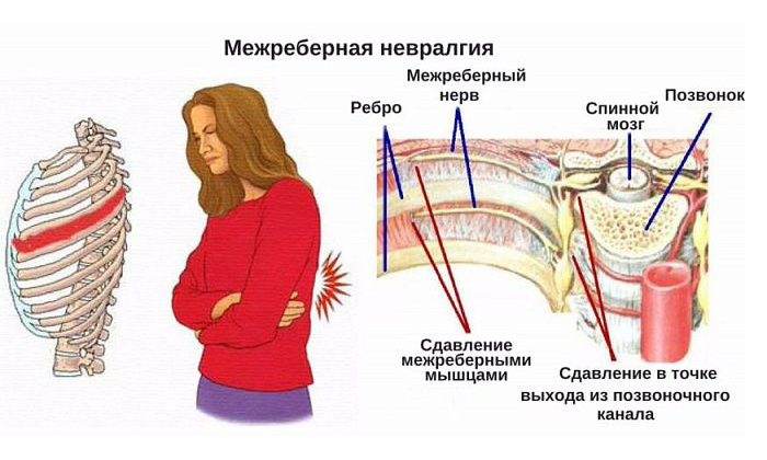 Причины и симптомы межреберной невралгии, ее лечение