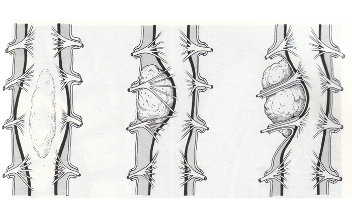 Лечение межреберной невралгии с симптомами слева, в области сердца