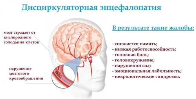 Дисциркуляторная энцефалопатия 3 степени