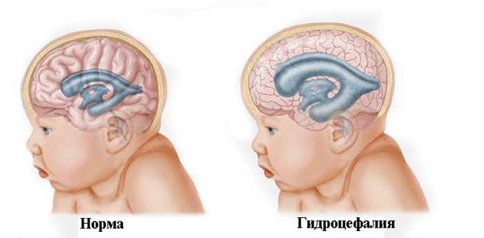 Особенности течения опухоли головного мозга в детском возрасте