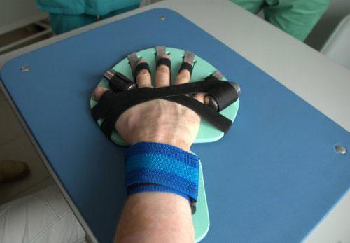 Тренажер-фиксатор пальцев руки после инсульта &#171,Ладошка&#187,