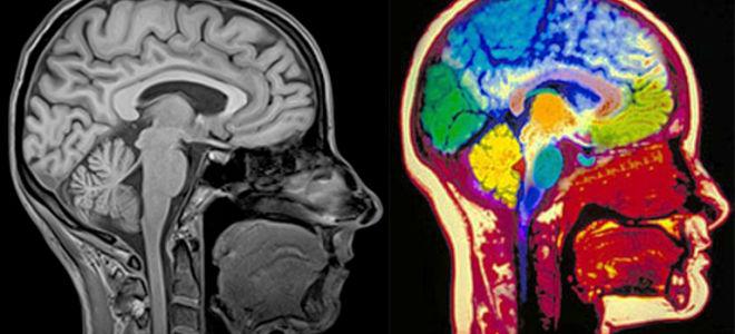 отличие МРТ с контрастом и без