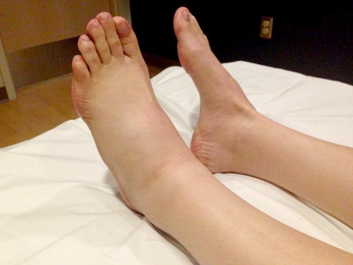 Отечность ног после инсульта