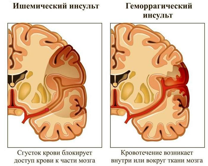 Виды инсульта
