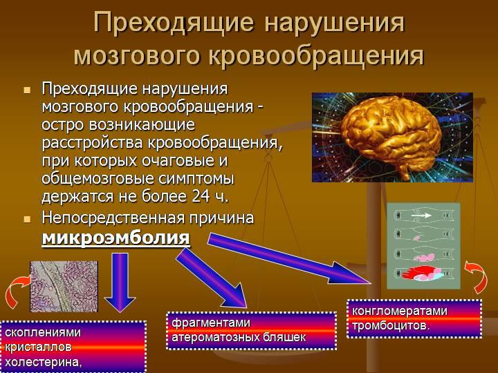 Преходящее нарушение кровообращения в мозге