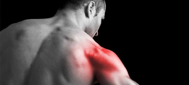 Причины возникновения мышечной невралгии