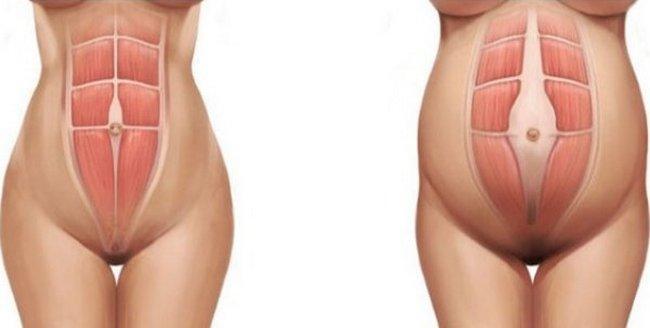 Как самой определить диастаз после родов: признаки и симптомы