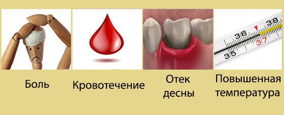 Почему от зуба может болеть голова?
