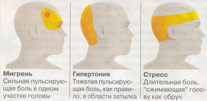 Причины резкой головной боли и первая помощь больному