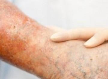 Медикаментозные препараты от трофических язв на ногах