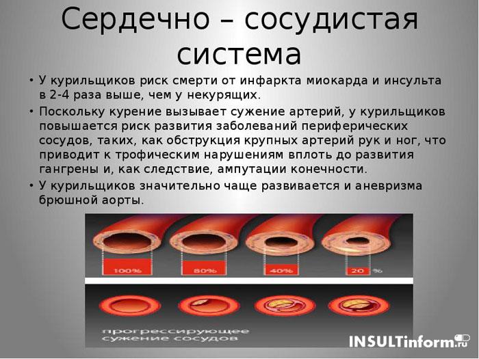 Курение приводит к инсульту