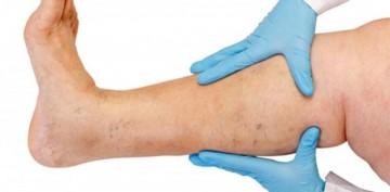 Лимфостаз нижних конечностей: симптомы, причины возникновения и методы лечения