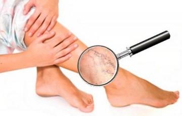 Гель от сосудистых звездочек на ногах: разновидности, особенности использования