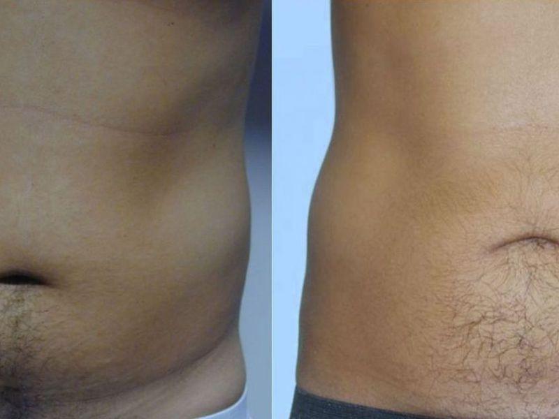 акваликс отзывы фото до и после мужчин после заражения