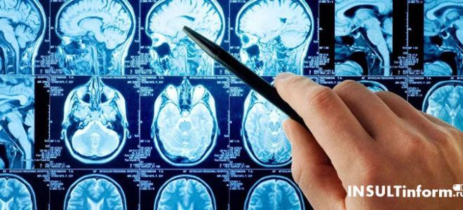 Отек головного мозга в качестве осложнения инсульта