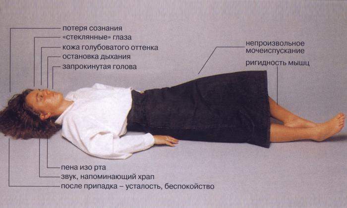 Как определить сотрясение мозга