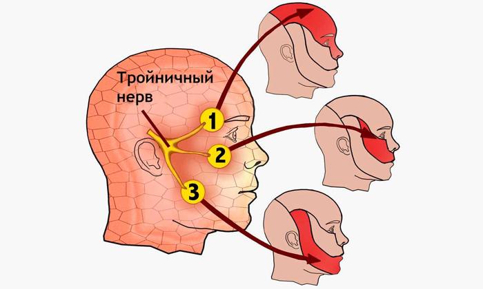 Тройничный нерв – это обширное разветвленное формирование, части которого расходятся практически по всему лицу
