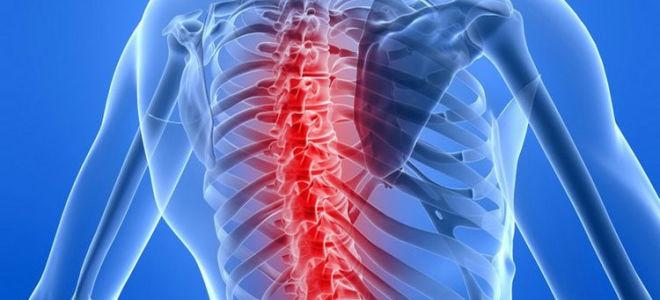 Предпосылки и признаки инсульта спинного мозга