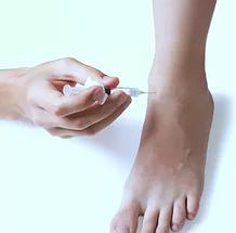 Боремся с варикозом вен на ногах при помощи уколов