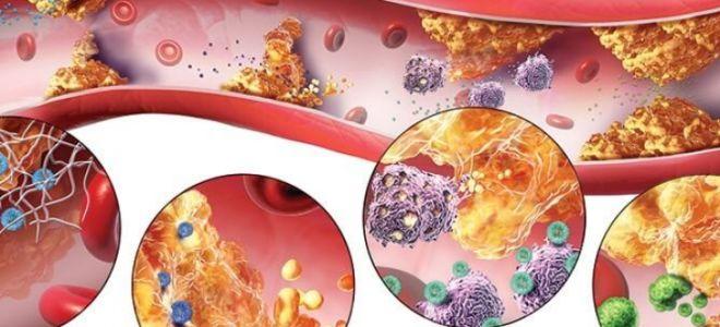 Профилактика и лечение атеросклероза