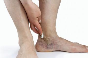 Глубокий тромбоз вен нижних конечностей: симптомы, лечение и профилактика