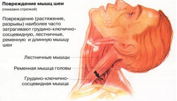 шея травмы