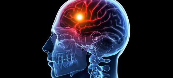 Стволовой инсульт: разновидность опаснейшей патологии