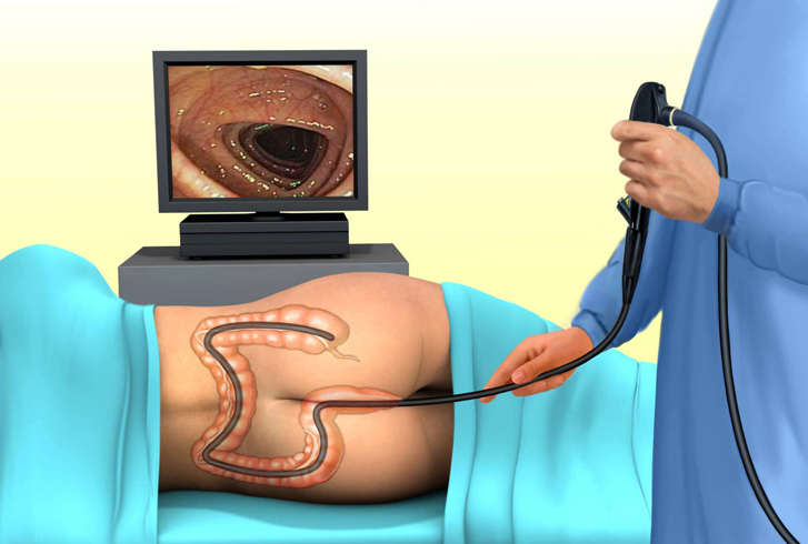 Во время проведения колоноскопии