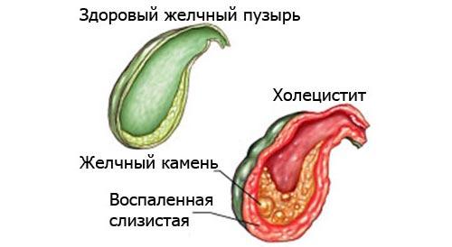 Заболевания жёлчного пузыря