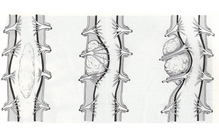 Причины невралгии шейного отдела, ее симптомы и лечение