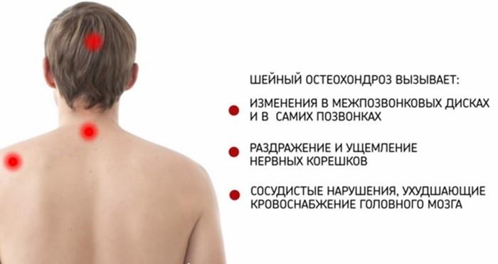 Что делать при шейном остеохондрозе
