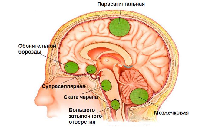 Симптомы и способы лечения сенсомоторной афазии