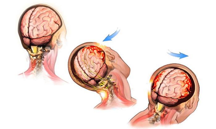 Причины температуры при сотрясении мозга – что делать?
