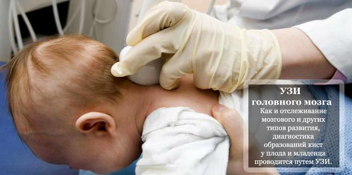 УЗИ головного мозга у младенца