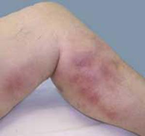 Тромбофлебит глубоких вен нижних конечностей: симптомы, лечение, профилактика