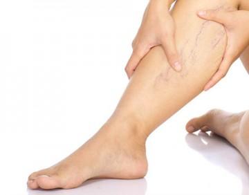 Варикоз: лечение и профилактика болезни вен