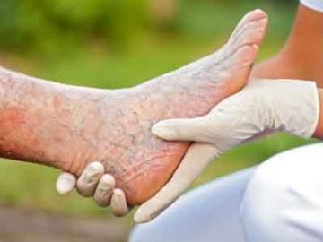 Быстрое и эффективное лечение отеков на ступнях ног у женщин