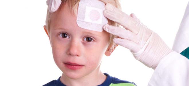 Опасны ли удары головой у маленьких детей?