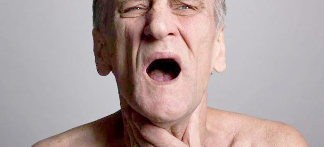 Как избавиться от нарушения глотания после инсульта