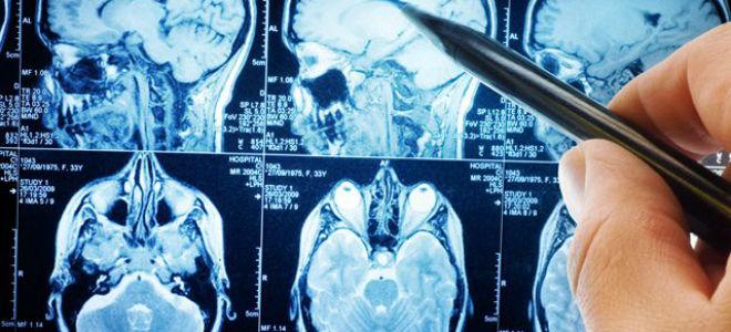 Как проходить МРТ головного мозга с контрастом?