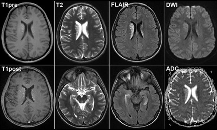 Методы и правила диагностики болезни Альцгеймера