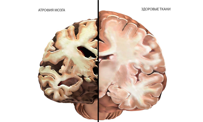 Продолжительность жизни при болезни Паркинсона