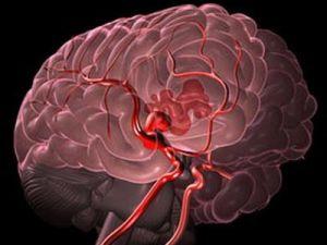 Причины и симптомы энцефалопатии смешанного генеза