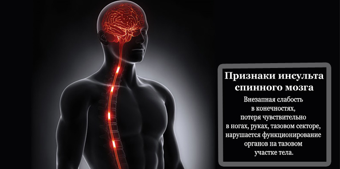 Признаки инсульта спинного мозга
