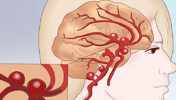 Субарахноидальное кровоизлияние в мозгу