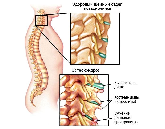 Звон в ушах на фоне шейного остеохондроза
