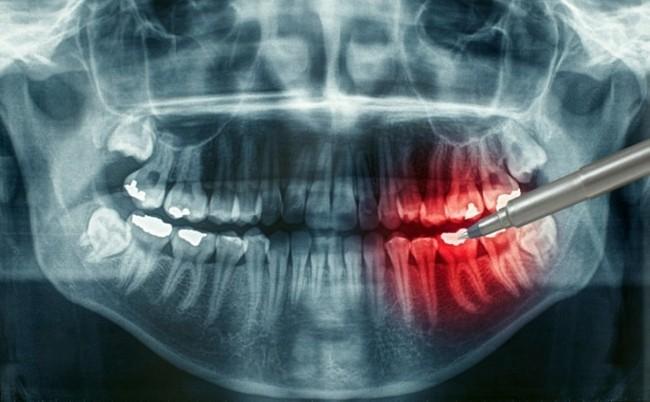 После родов болят, темнеют, крошатся и ломят зубы Что делать?