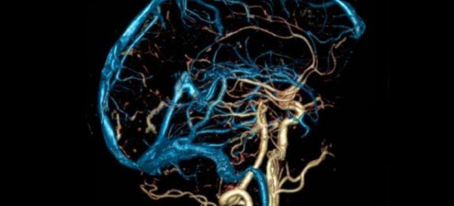 Причины, симптомы и методы лечения дисциркуляторной энцефалопатии
