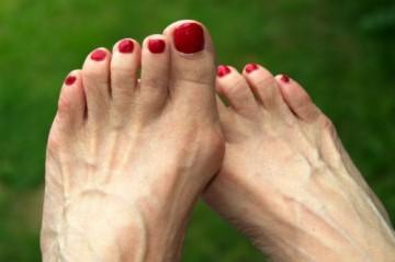 Вены на ногах выступают: причины и методы лечения проблемы