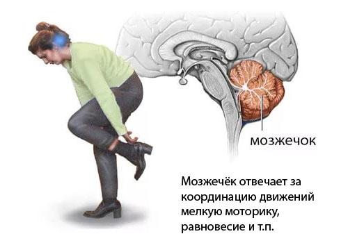 Инсульт мозжечка головного мозга
